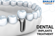 Shalby Hospitals: Best Dental Implant in India